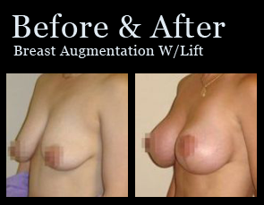 Breast Lift in Jacksonville at First Coast Plastic Surgery