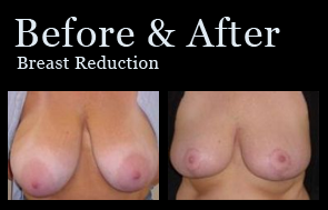 Breast Reduction in Jacksonville at First Coast Plastic Surgery