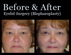 eyelid-surgery-photos