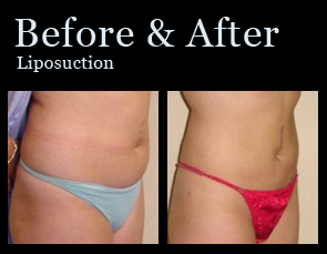 Liposuction In Jacksonville