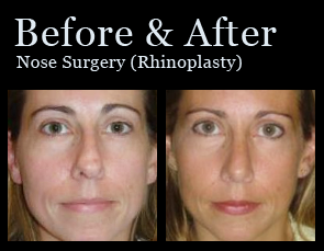 Nose Surgery in Jacksonville at First Coast Plastic Surgery
